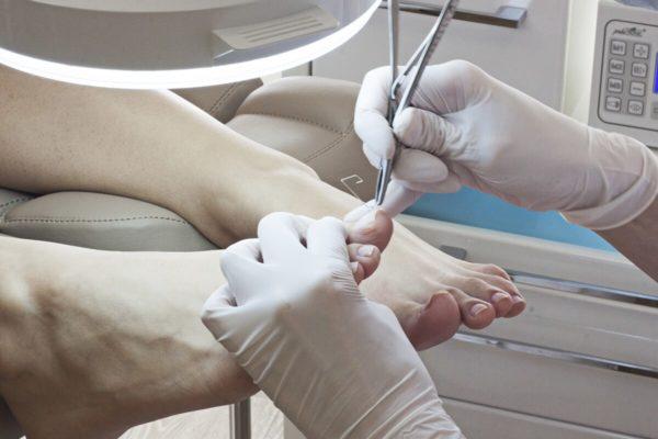 Вросший ноготь на большом пальце ноги: лечение, мази
