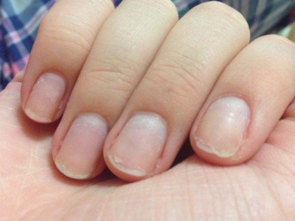 Волнистые ногти на руках: причины